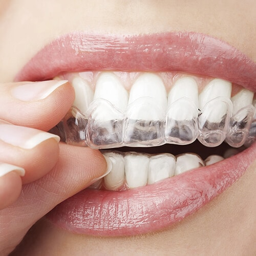 Close-up of a woman placing Invisalign® clear aligners into her mouth